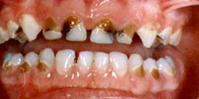 Baby Bottle Syndrome - liquids high in sugars. Kids Dental. German Dentist Marbella, San Pedro