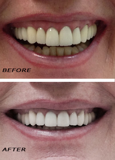 Before and after. Bridge, dental implants and crowns. German Dentist Marbella San Pedro