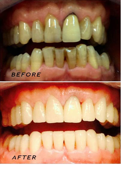 Before and after. Complete make-over with high quality ceramic crowns. German Dentist Marbella San Pedro