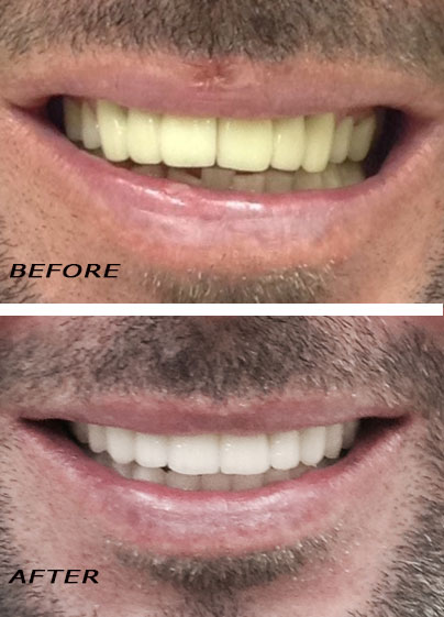 Before and after. Total makeover with high tech ceramic veneers and crowns. German Dentist Marbella San Pedro