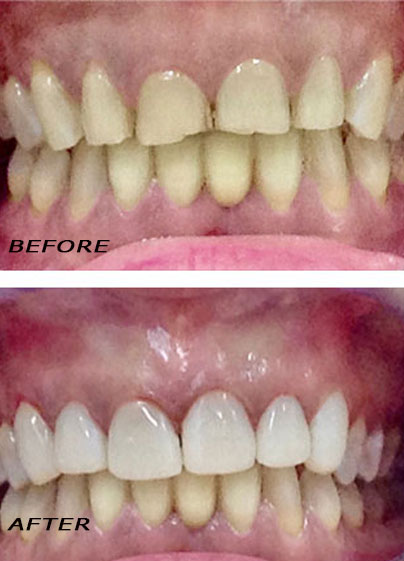 Before and after. Veneers Edelweiss in the top part optimized with laser. German Dentist Marbella San Pedro