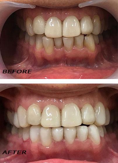 Before and after. Veneers Edelweiss in part below optimized with laser. German Dentist Marbella San Pedro