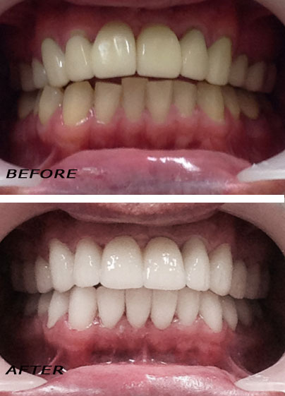 Before and after. High quality full ceramic crowns. German Dentist Marbella San Pedro