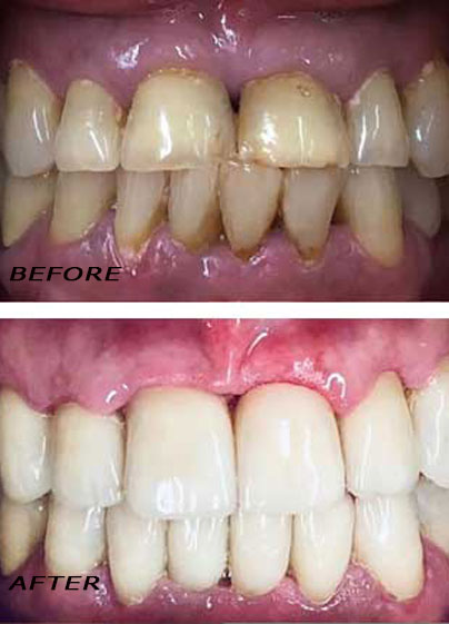 Before and after. Treatment with high quality ceramic crowns. German Dentist Marbella San Pedro