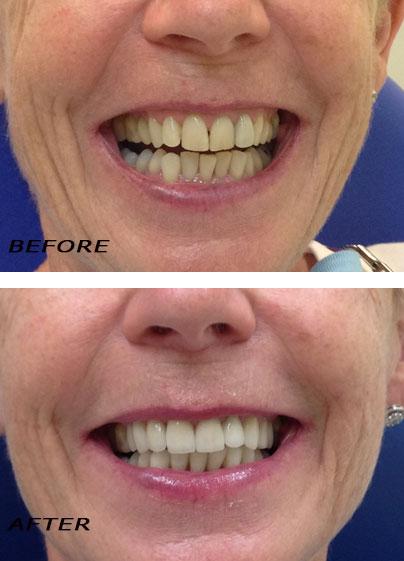 Before and after. High Tech Ceramic Veneers. German Dentist Marbella San Pedro