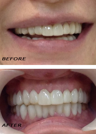 Before and after. Laser optimized top and bottom Edelweiss veneers. German Dentist Marbella San Pedro