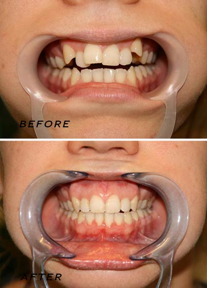 Before and after. Orthodontic treatment. German Dentist Marbella San Pedro