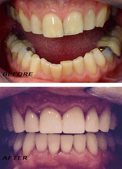Before and after. Restorative dental treatment: Bridge, implants and crowns. German Dentist Marbella San Pedro