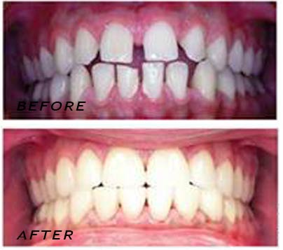 Before and after. Treatment with high tech ceramic veneers. German Dentist Marbella San Pedro