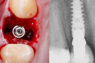 NobelActive Immediate Implant Primary Stability. German Dentist Marbella, San Pedro