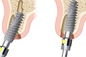 NobelActive Immediate Implant Implant Position. German Dentist Marbella, San Pedro