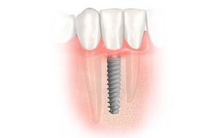 NobelActive Immediate Implant Place Implants. German Dentist Marbella, San Pedro