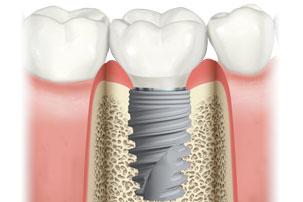 NobelActive Immediate Implant Natural Molar. German Dentist Marbella, San Pedro