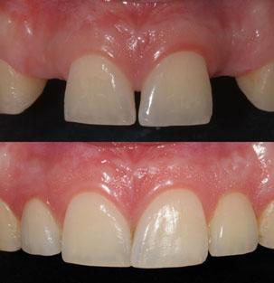 NobelActive Immediate Implant. Before After Anterior Restoration. German Dentist Marbella, San Pedro