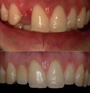 NobelActive Immediate Implant. Before After Restoration of upper lateral incisor. German Dentist Marbella, San Pedro