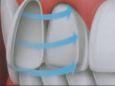 Dental treatments: High Tech Ceramic Veneers German Dentist Marbella, San Pedro