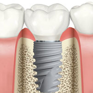 Immediate Dental Implant. Clínica Dental San Pedro, Marbella