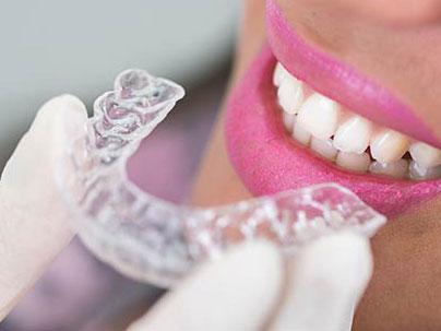 Dental treatments: Orthodontics German Dentist Marbella, San Pedro