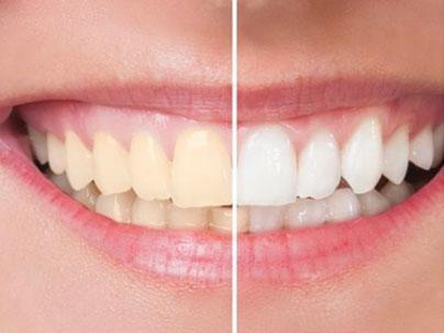 Dental treatments: Teeth Whitening German Dentist Marbella, San Pedro