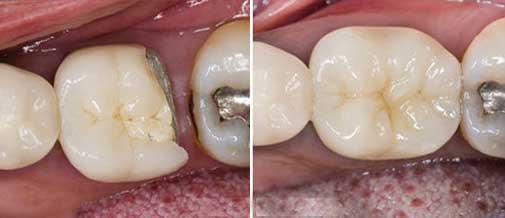 Dental Restoration Reconstruction with Dental Filling like Composite Fillings. Dentist Marbella Dr Hotz