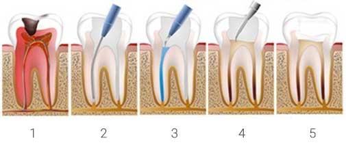 Dental Restoration Procedure. Dentist Marbella Dr Hotz