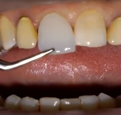 Dental Treatments Edelweiss Direct Veneers Marbella San Pedro