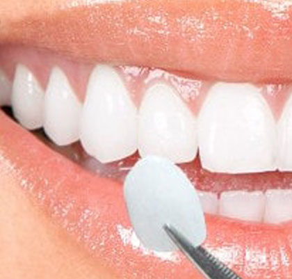 Dental Treatments High Tech Ceramic Veneers Marbella San Pedro