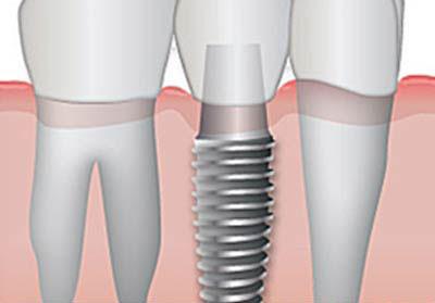 Immediate Loading Of Dental Implants. German Dentist Clinic Marbella San Pedro