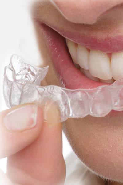 Orthodontics aligner therapies German Dentist Clinic Marbella San Pedro