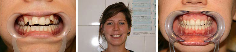 Orthodontics Patient Photo. German Dentist Clinic Marbella San Pedro