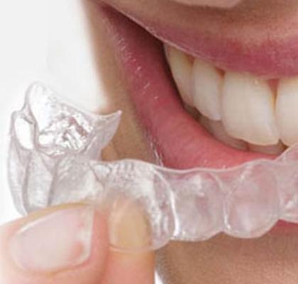 Dental Treatments Orthodontics Marbella San Pedro