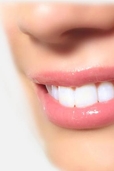 Teeth Whitening - truly effective products are only used in professional bleaching. German Dentist Clinic Marbella San Pedro