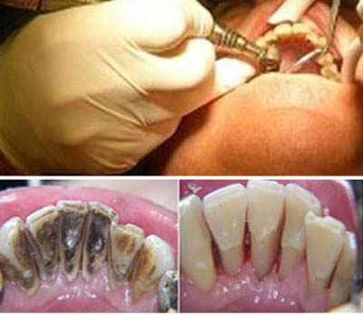 Dental Prophylaxis - professional tooth cleaning. German Dentist Clinic Marbella San Pedro