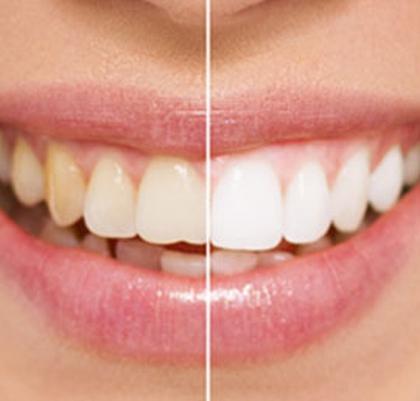 Dental Treatments Teeth Whitening Marbella San Pedro